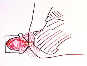 fESWT Achillessehnenansatz Zeichnung